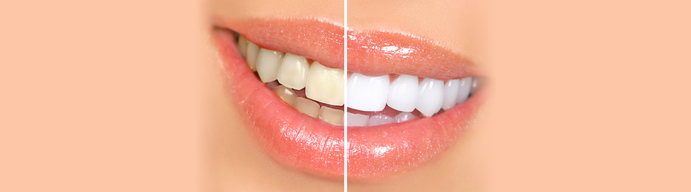 Teeth Whitening - Chingford Mount Dental Practice - London