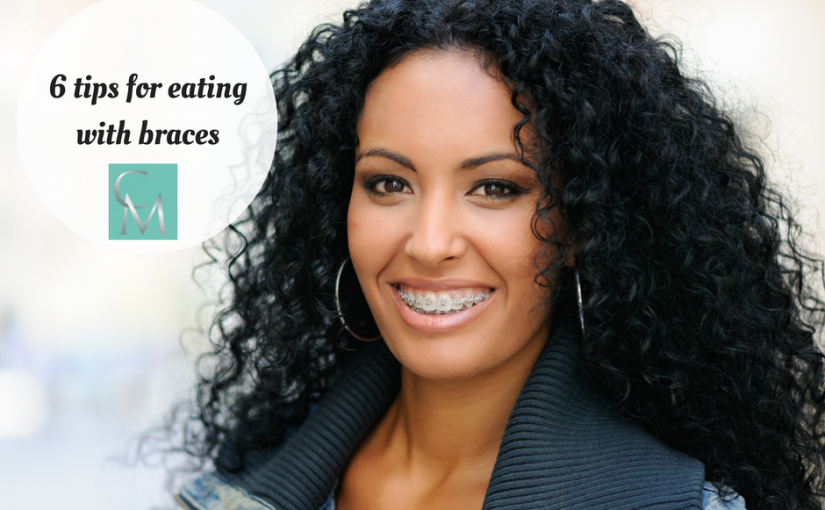 6 Tips for Eating with Braces - Chingford Mount Dental Practice